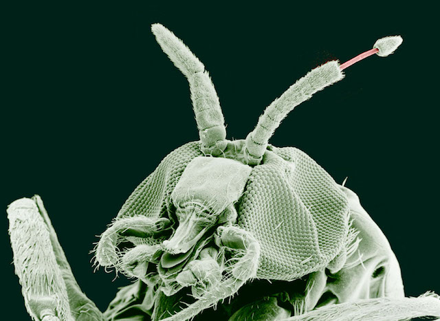 Adult Blackfly carrying the Onchocerca volvulus parasite emerging from antenna Image source
