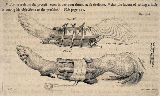 Leg splints – Wellcome Library, London – CC BY 4.0