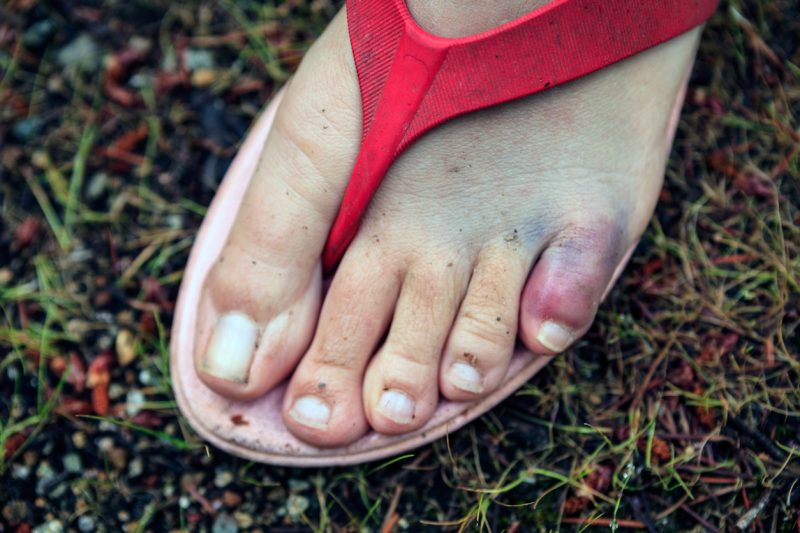 A broken toe in the outdoors
